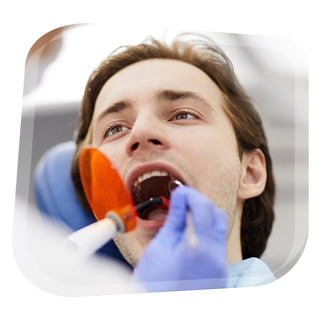 Blanqueamiento Dental Combinado en Granada