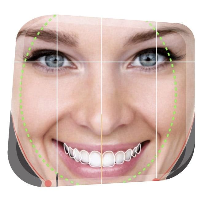 Diseño de Sonrisas en Granada